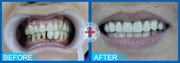 Trước và sau khi bọc răng sứ 3