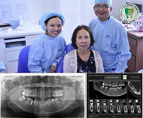 thuc-hien-cay-ghep-rang-implant