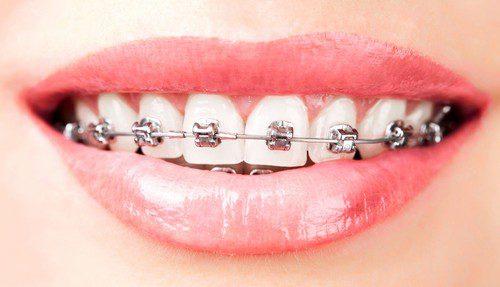 Chi phí niềng răng mắc cài kim loại bao nhiêu tiền?