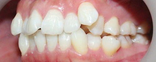 Có nên niềng răng khểnh hay không?