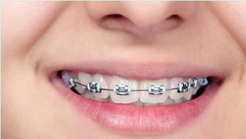 Niềng 2 răng cửa hô bao lâu có hiệu quả?