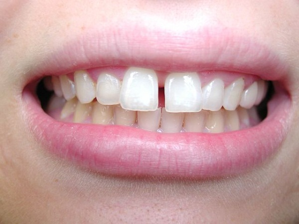 Niềng 2 răng cửa có hiệu quả không?