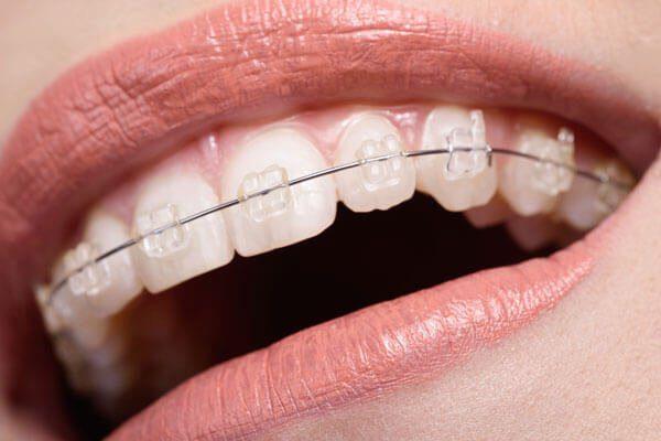 Niềng răng hàm trên như thế nào?