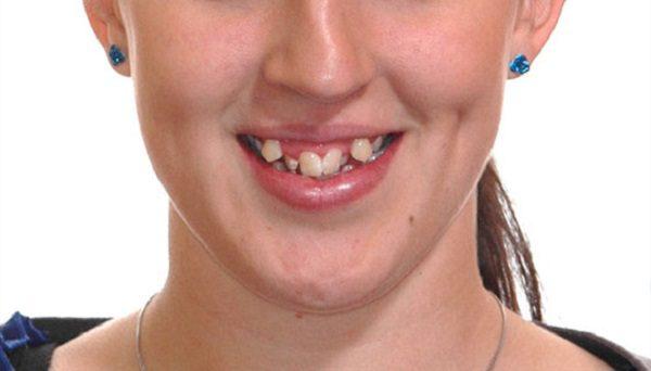 Niềng răng khểnh