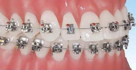 Niềng răng mắc cài Inox là gì?