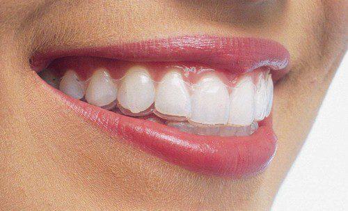 Niềng răng tháo lắp giá bao nhiêu tiền?