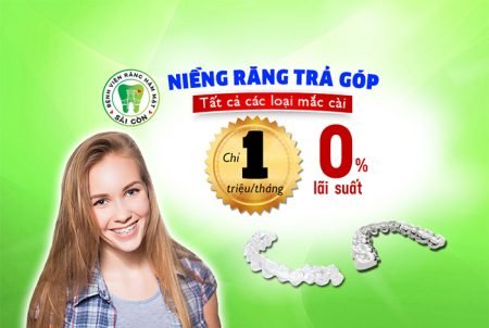 nieng-rang-tra-gop-5