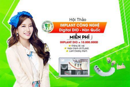implant-dio-1