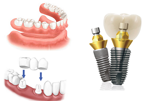 ky-thuat-cay-ghep-implant-3