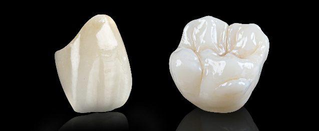 Làm răng sứ Cercon