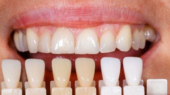 Làm răng sứ Veneer
