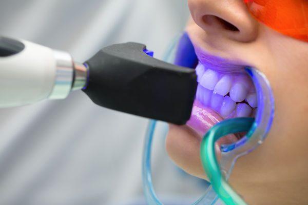 Nên tẩy trắng răng ở đâu?