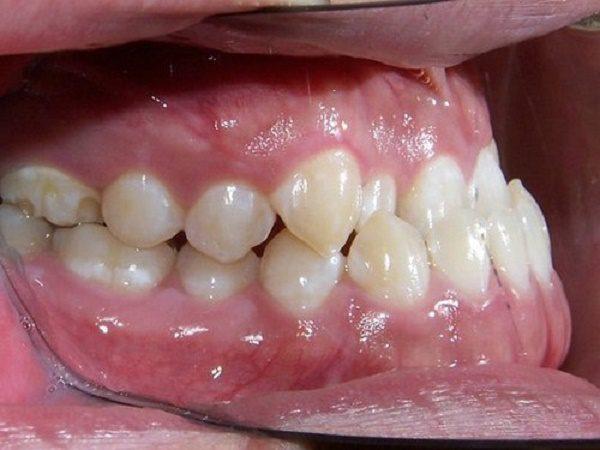 Niềng răng hàm móm có cần phẫu thuật xương không?