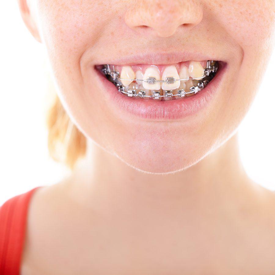 Niềng răng khểnh mất bao lâu thời gian?
