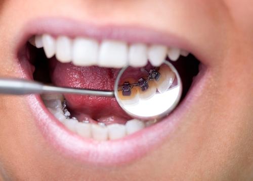 Niềng răng mặt lưỡi giá bao nhiêu tiền?