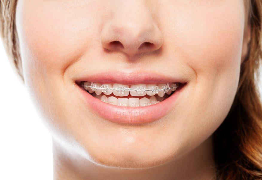 Niềng răng thưa giá bao nhiêu tiền?