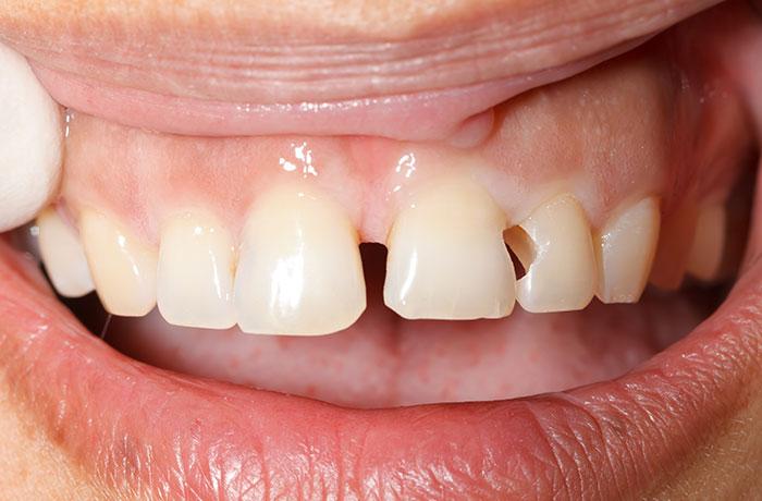 Trám răng cửa bị mẻ
