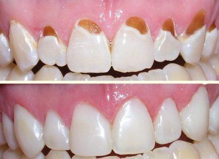 Trám răng cửa bị sâu nhẹ