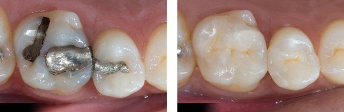 Trám răng mất bao nhiêu thời gian?