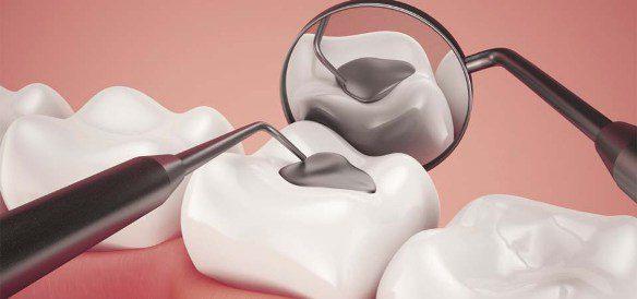 Trám răng nên ăn gì