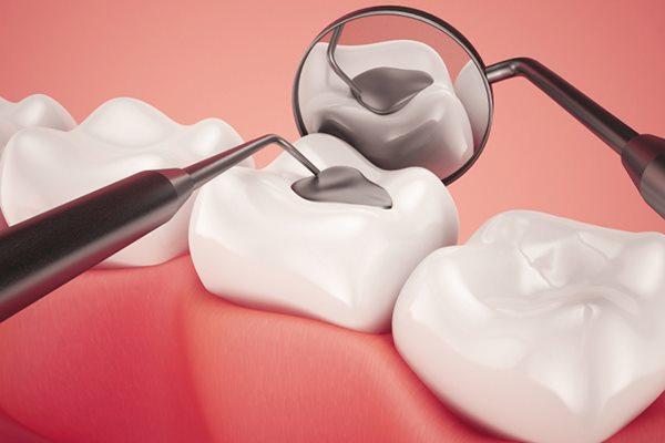 Trám răng ở đâu tốt tphcm?