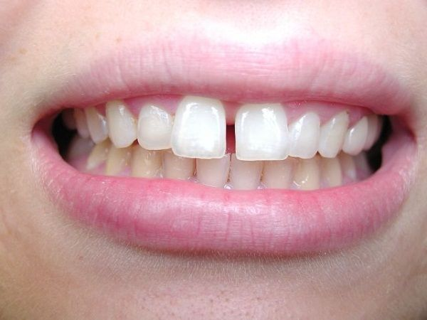 Trám răng thưa