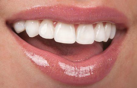 Trồng răng sứ ở đâu tốt?