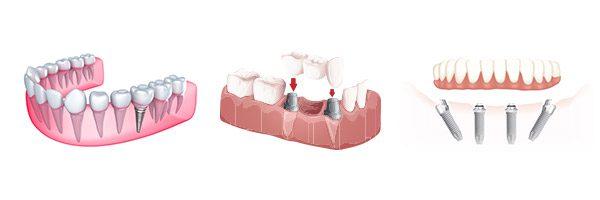 Trồng răng vĩnh viễn có được không?