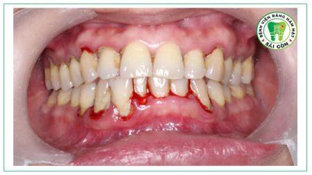 cạo vôi răng có chảy máu không