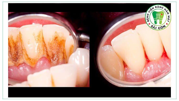 cạo vôi răng giúp răng sáng khỏe