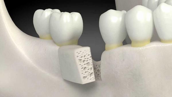 Cấy ghép Implant giá rẻ