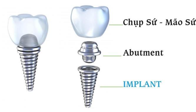 cay-ghep-implant-gia-re-2
