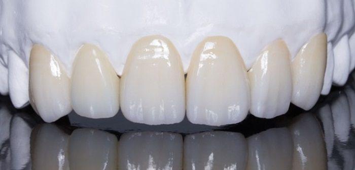 Chi phí làm răng sứ thẩm mỹ