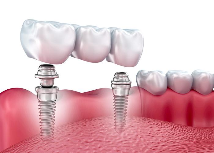 gia-lam-rang-su-implant-1
