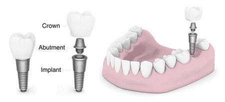 gia-rang-su-implant-1