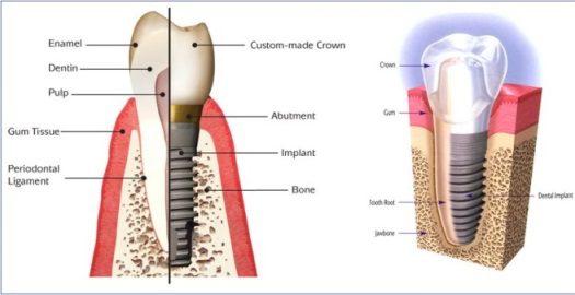implant-nha-khoa-gia-bao-nhieu-2