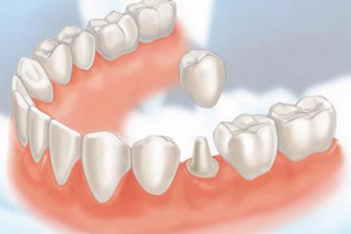 nen-boc-rang-su-hay-cay-ghep-implant-2