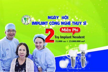 ngay-hoi-implant-1
