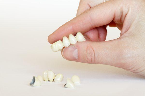 phương pháp bọc răng sứ thẩm mỹ hiện nay