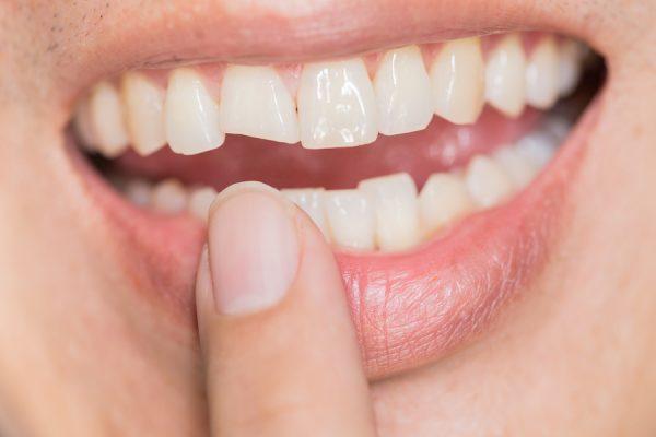 răng sứ bị mẻ vỡ phải làm gì