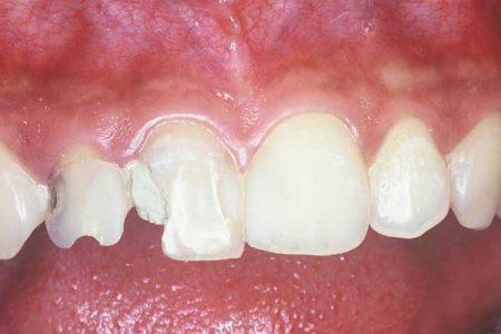 trám răng hàm trên