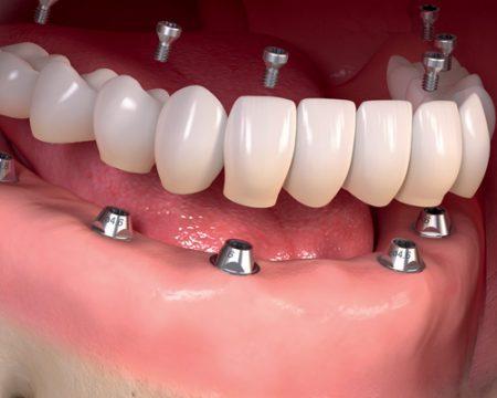 trong-rang-gia-Implant-1