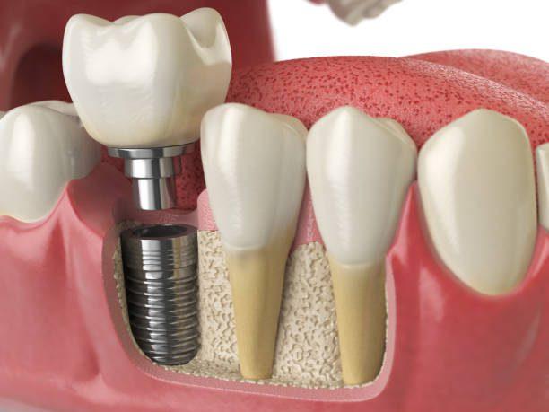 trong-rang-gia-Implant-2