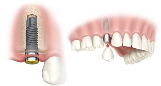 trong-rang-gia-Implant-3