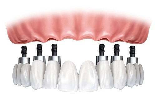 trong-rang-implant-1