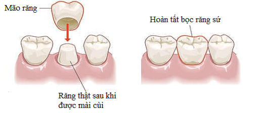 trong-rang-implant-2