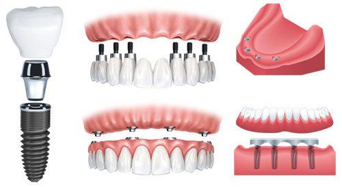 trong-rang-implant-3