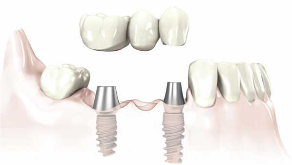 trong-rang-implant-co-dinh-3