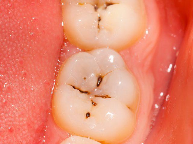 bọc sứ răng sâu