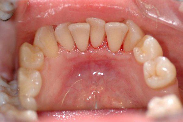 cách điều trị bệnh chảy máu chân răng